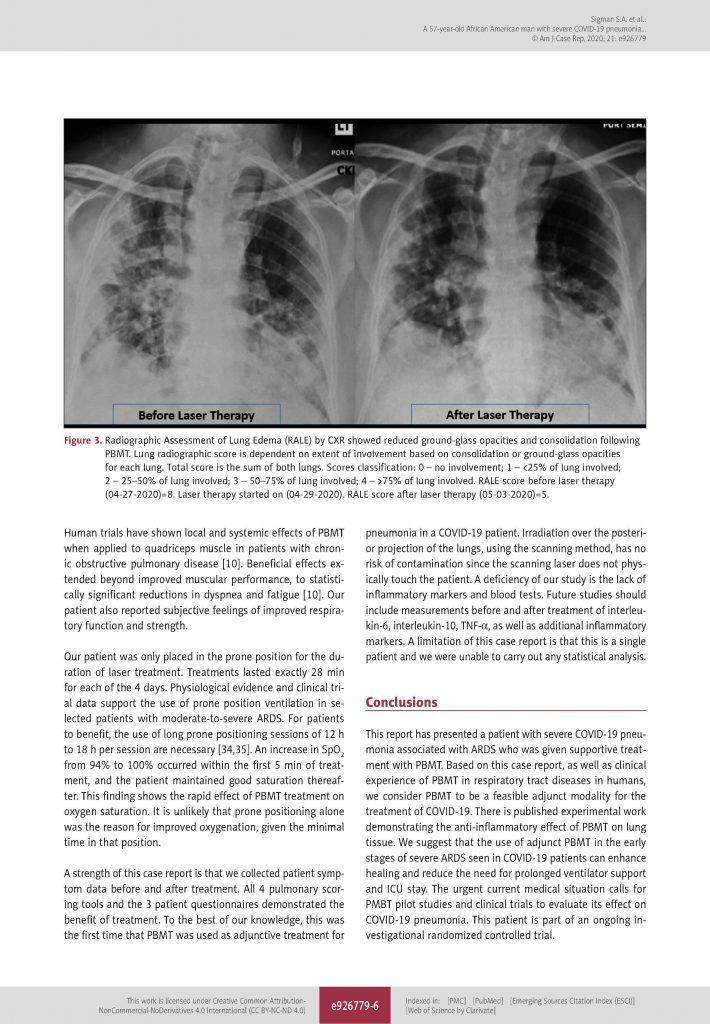 MLS tüdőgyulladás